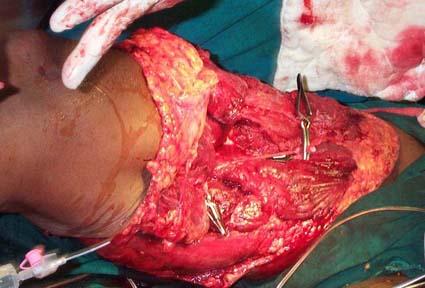 polytrauma - limb salvage or ablation, Muscles