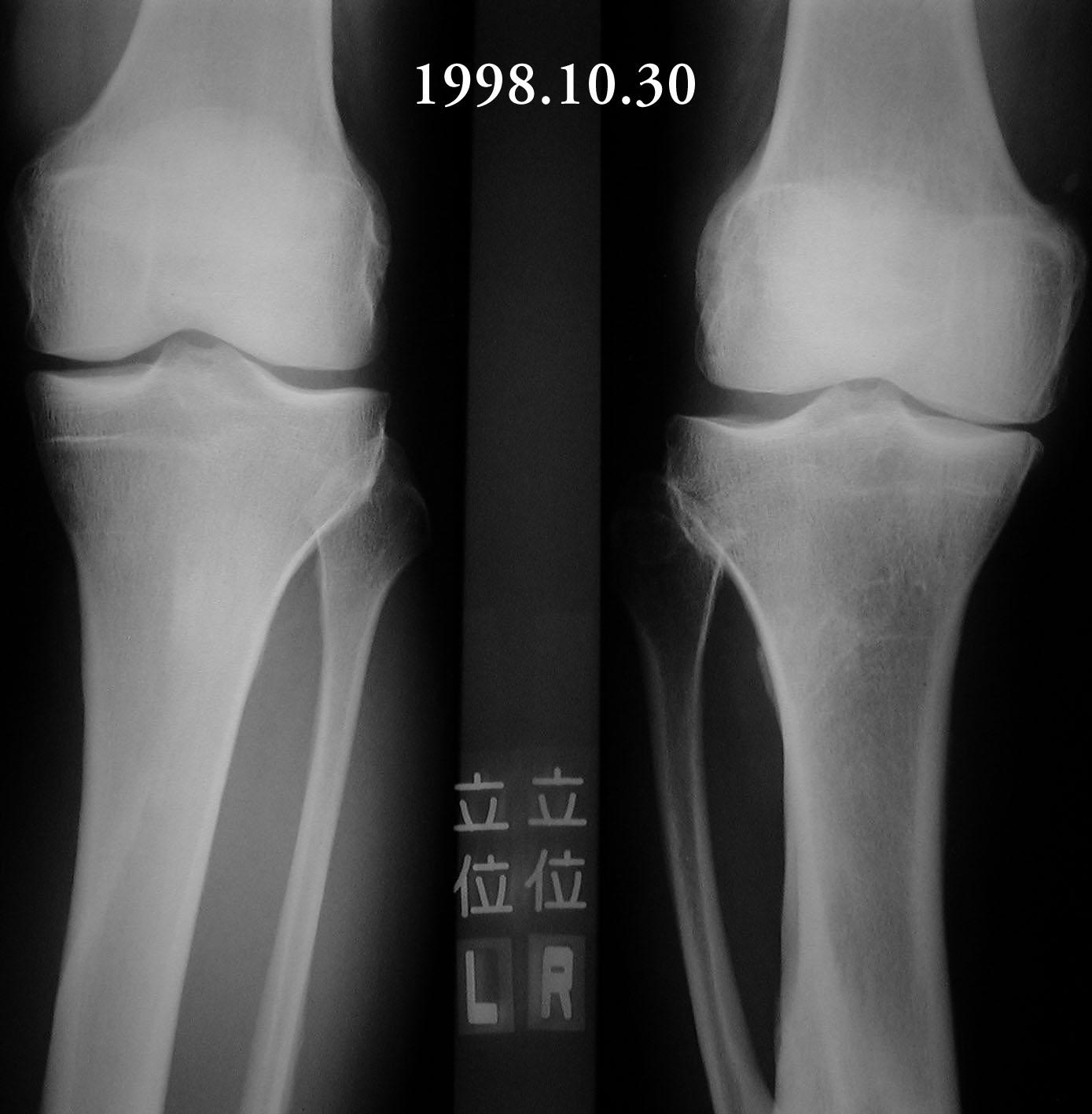 m9As640normal-knee-xray  Xray Knee Osteoarthritis